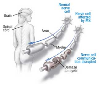 ms myelin damage